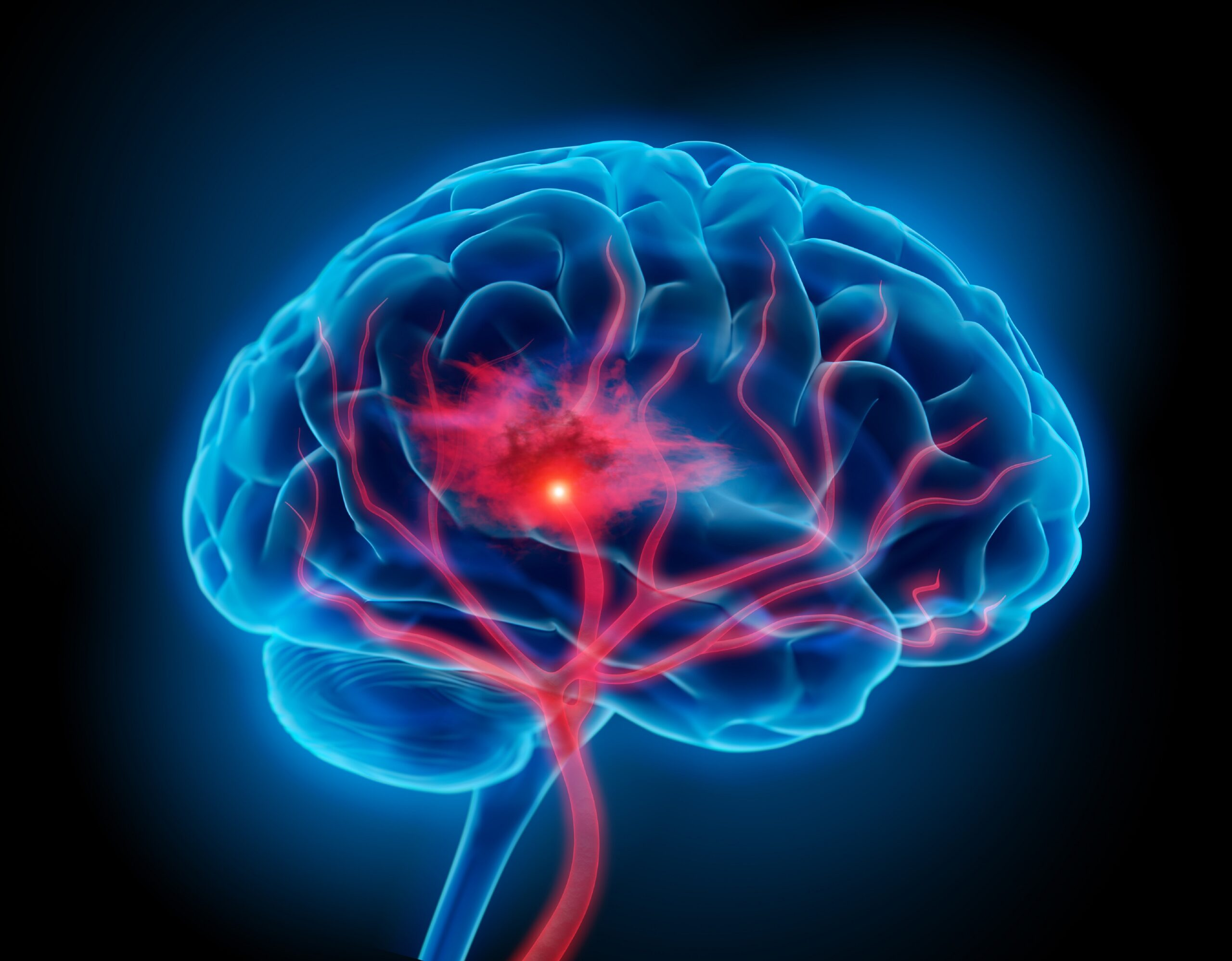 Blood-thinning drugs increase the risk of cerebral hemorrhage - medical practice