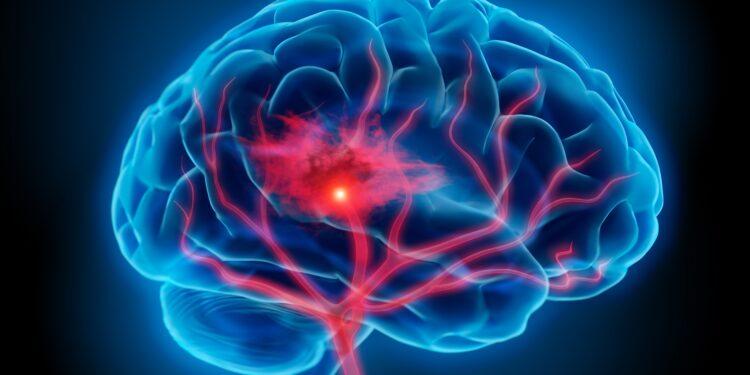 Diagram of a stroke