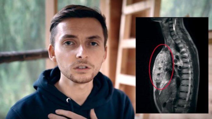 Real Life Men: Bickenbacher Youtuber an Krebs gestorben |  hessenschau.de