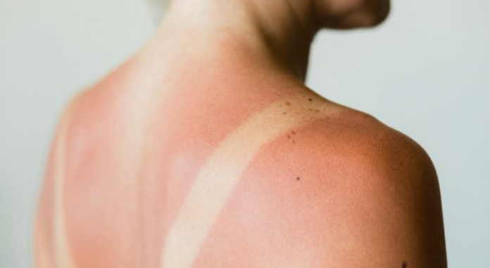 Sunburn: 9 natural tips to soothe and treat effectively