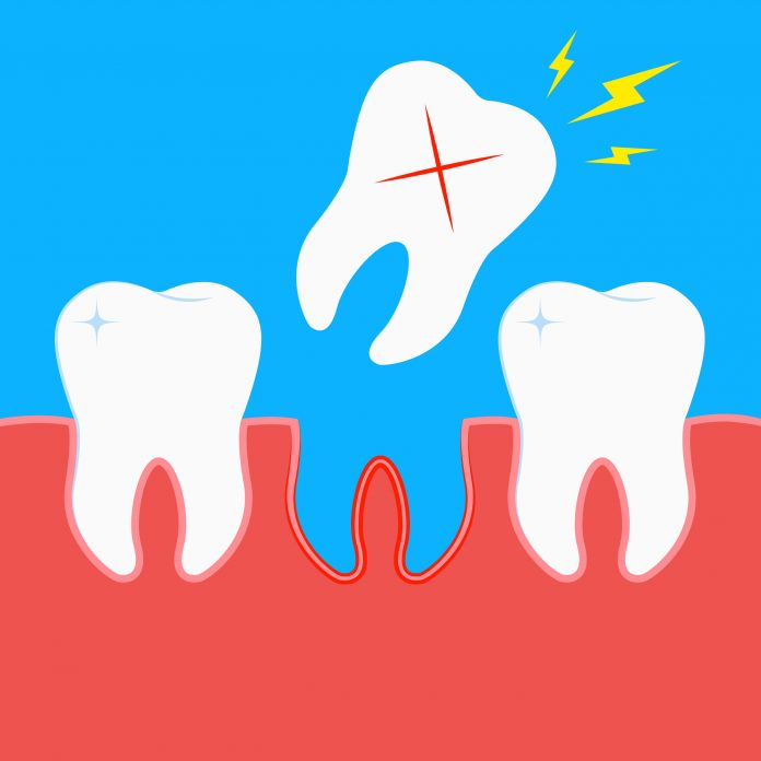 Cognitive decline and dementia due to tooth loss - a healing practice