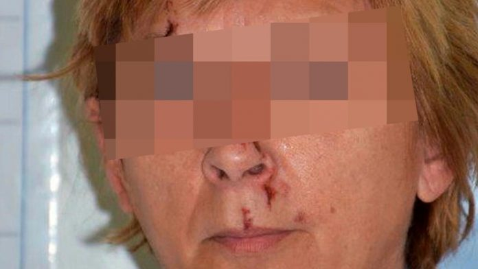 Croatian police solve the mystery of a woman with no memory